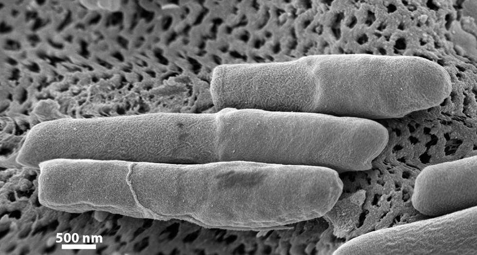 Una colonia de C. difficile vista al microscopio.
