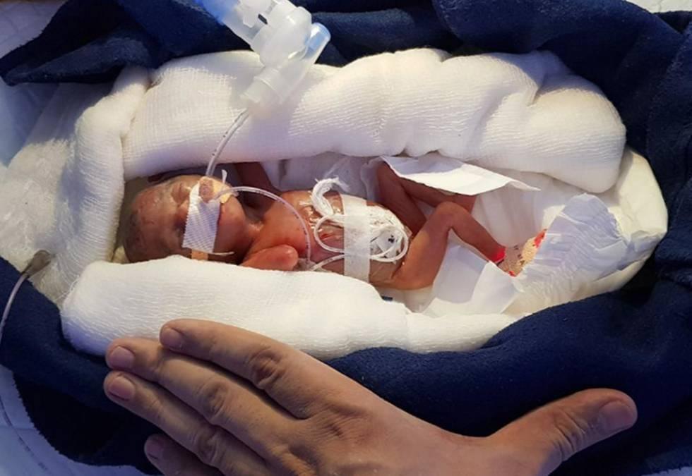 Una beb logra sobrevivir tras nacer con 400 gramos a las 28 semanas mam s y pap s el pa s - Con cuantos meses se sienta un bebe ...