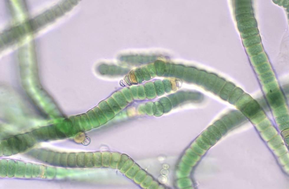 La cianobacteria fijadora de nitrógeno 'Roholtiella edaphica' vista al microscopio óptico (400 aumentos).