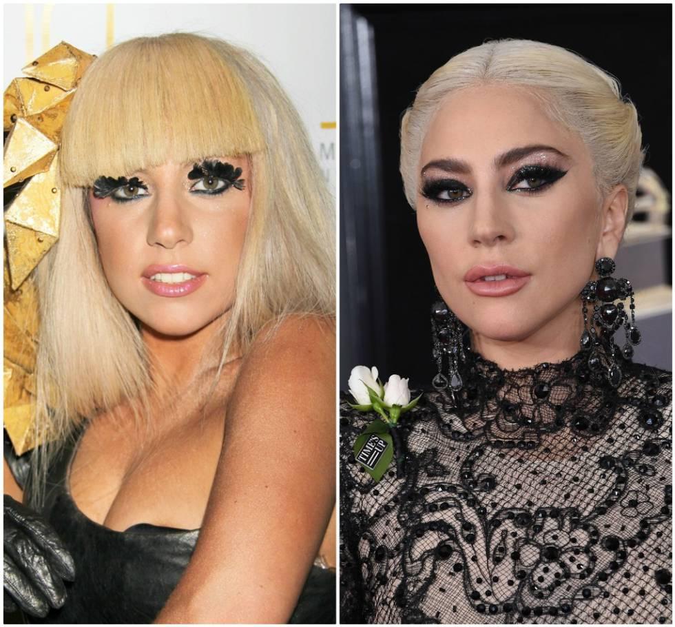 Lady Gaga Age Lady Gaga Cirugias