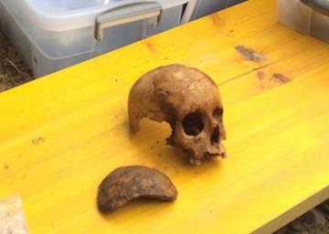 A sliver of skull solves seven Civil War crimes