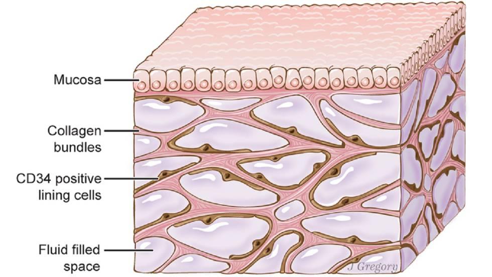 Recreación artística de las cavidades del intersticio bajo la piel.