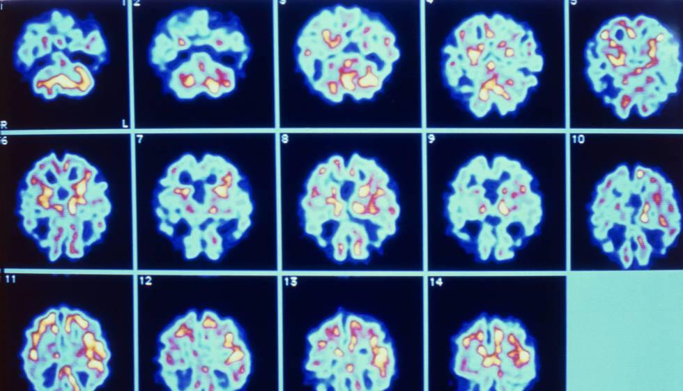 Serie de imágenes del cerebro de un paciente con alzhéimer obtenidas mediante PET.