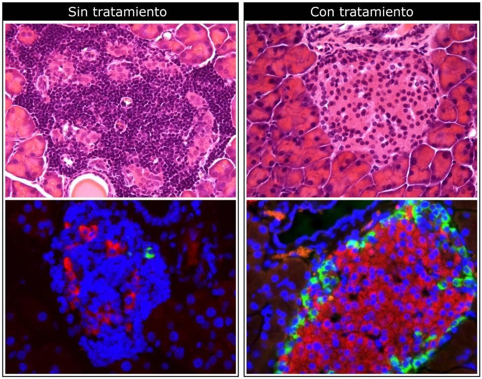 Imágenes de microscopio del páncreas en un animal de prueba.  Encima: la droga reduce la infiltración de las células del sistema inmunológico (puntos más oscuros).  A continuación: el medicamento aumenta la producción de insulina (en rojo)