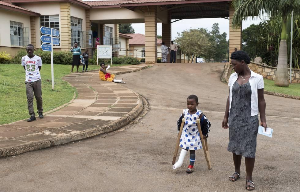 En el hospital CoRSU, la cirugía infantil es gratuita. Ayinemani Juliet, de cinco años, sufrió quemaduras graves cuando se cayó en la lumbre de su casa.