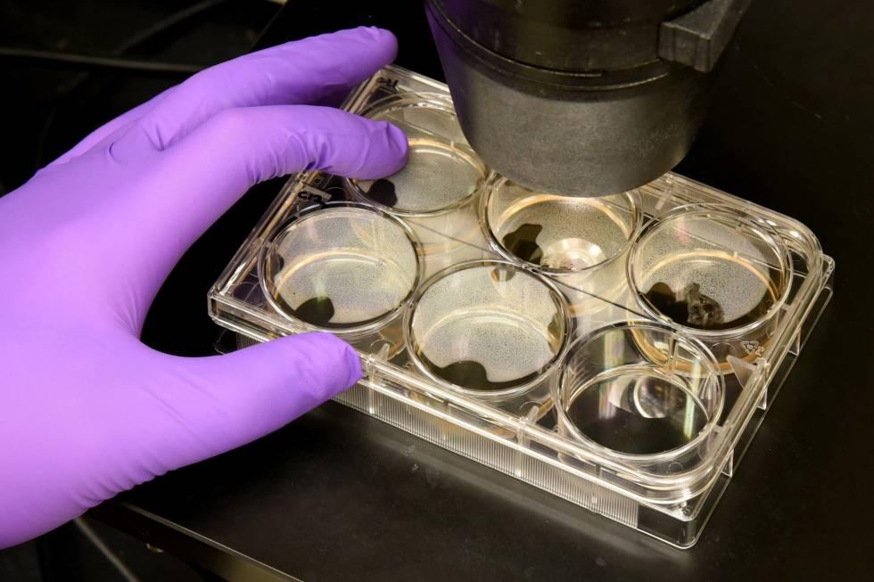 Colonias de células madre en el Instituto Johns Hopkins de Ingeniería Celular en Baltimore, Maryland.