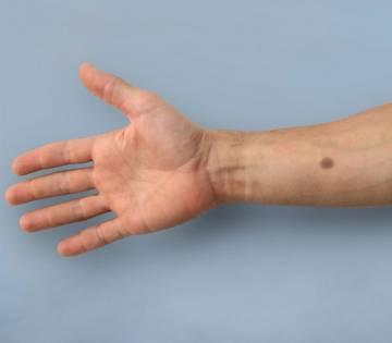 tatuaje biomedico