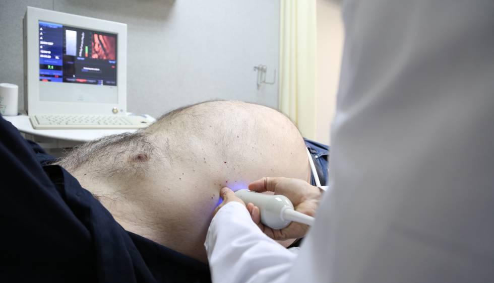 Sintomas de higado inflamado en ninos