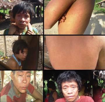 Imágenes del actual brote de sarampión.