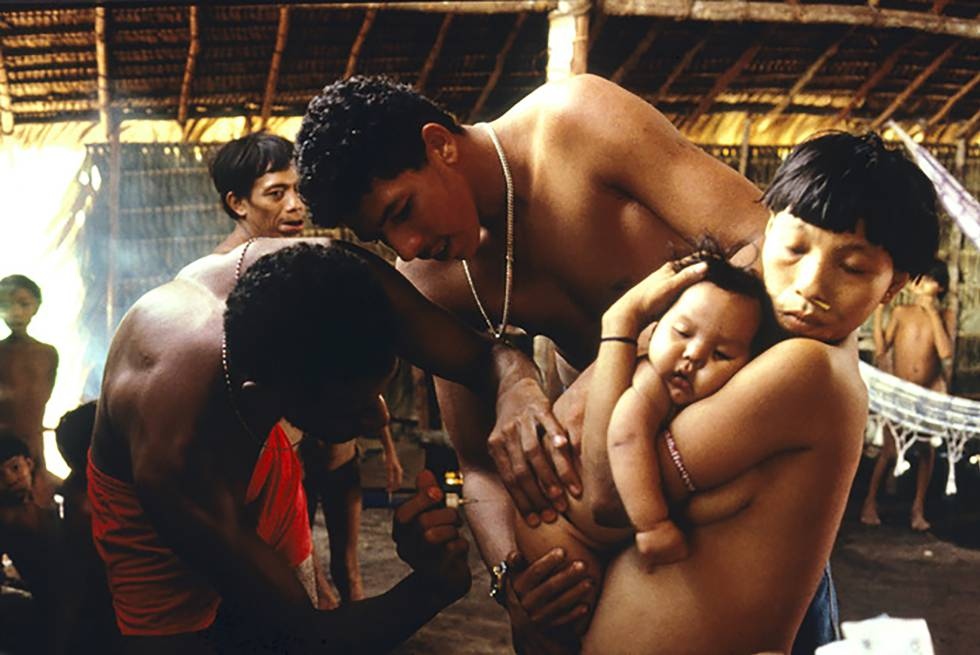 Doctor examina a bebé yanomami enfermo, Balaú, 1996.rn