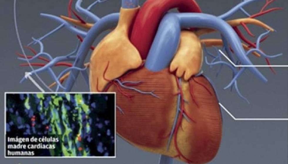 Células cardíacas madre, junto a la representación de un corazón.