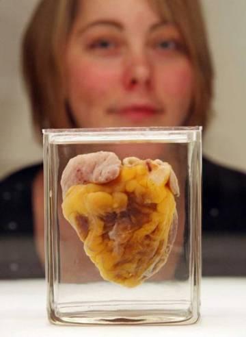Jennifer Sutton ve su propio corazón en una muestra en Londres.