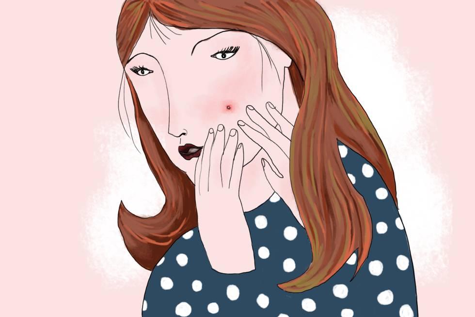 Los seis tipos de granos que distinguen los dermatólogos y cómo tratarlos