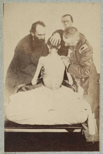 Uno de los soldados de la Unión, tras ser liberado de una prisión confederada. Las imágenes frontales recuerdan a las de los supervivientes del Holocausto.