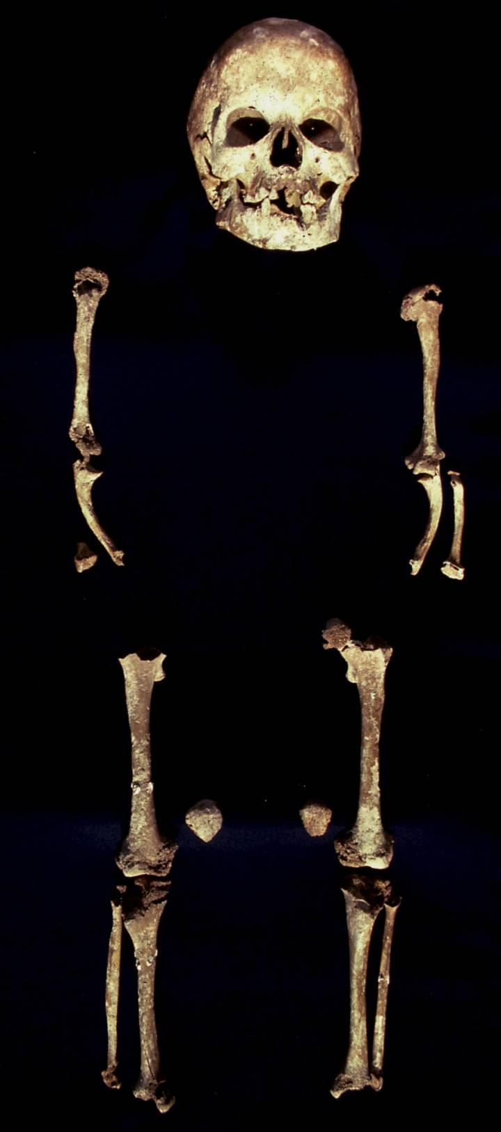Displasia acromesomélica de Romito 2 (Romito, Italia). Foto: David Frayer.