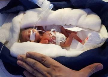 sobrevive un bebe de 34 semanas de diabetes gestacional