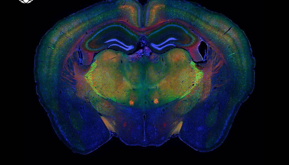 El cerebro de un ratón con los diferentes tipos celulares destacados.
