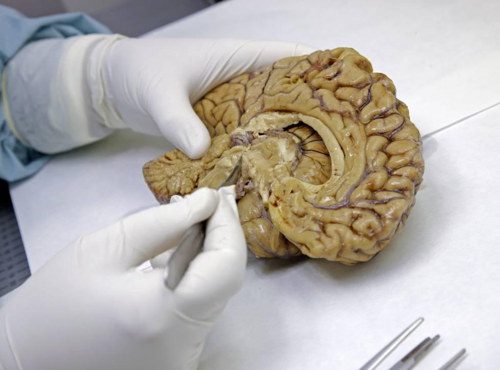 Disección en el banco de cerebros de la Fundación CIEN, en Madrid.