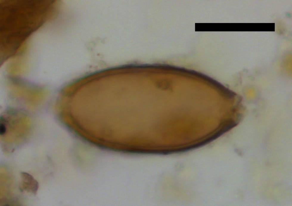 Uno de los huevos de 'Trichuris trichiura' hallados en los coprolitos de Çatalhöyük. La barra negra representa 20 micras.