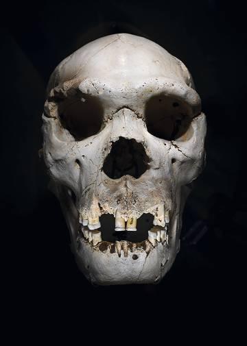 Cráneo de Homo heidelbergensis conocido como Miguelón, hallado en Atapuerca. Se cree que este homínido de hace 400.000 años murió por un flemón, aún visible.