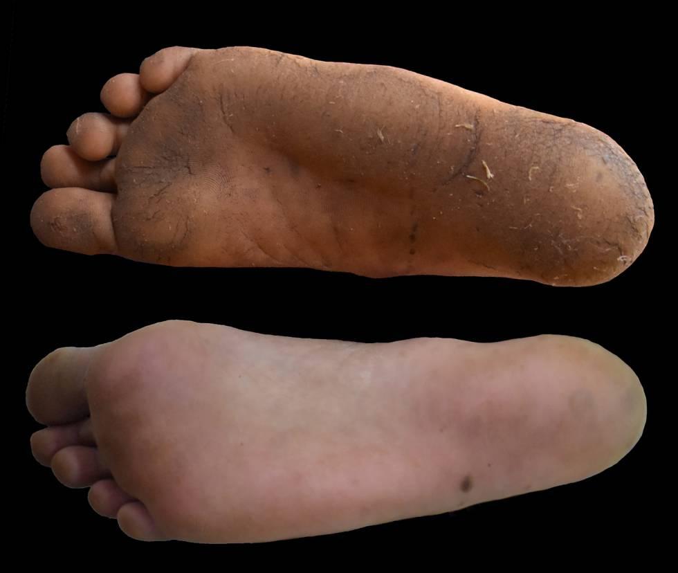 callos pies