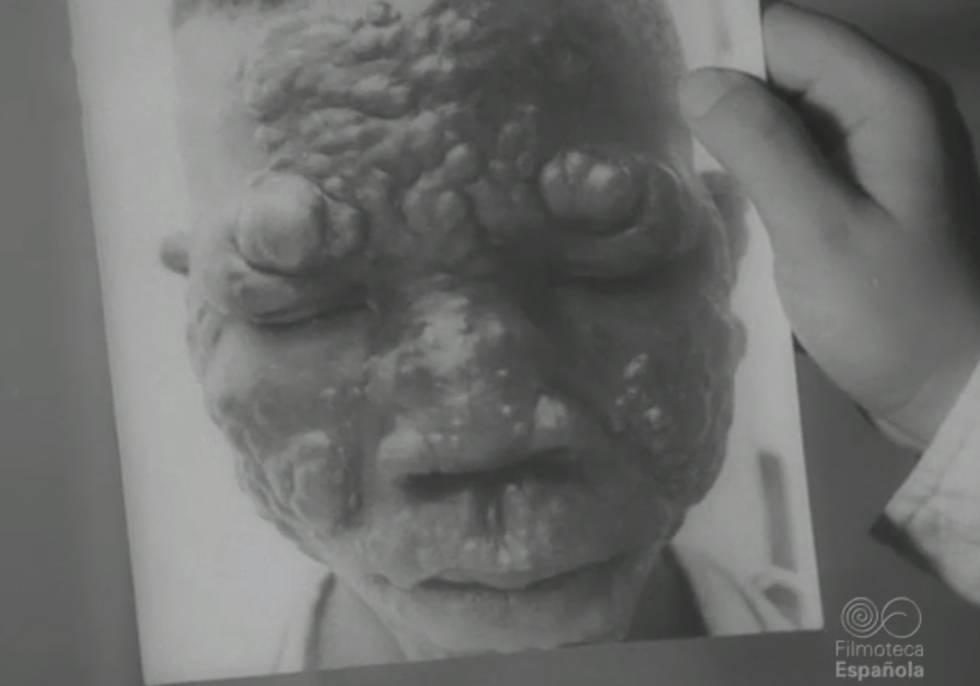 Imagen de un niño enfermo en la leprosería de Mikomeseng.