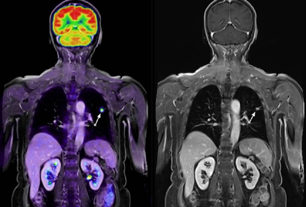 Imágenes médicas de un paciente con cáncer de pulmón.