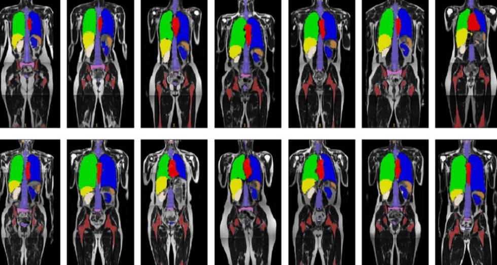 Escáneres de pacientes sobre los que el sistema de visión artificial identifica los órganos que pueden verse afectados por la radioterapia.