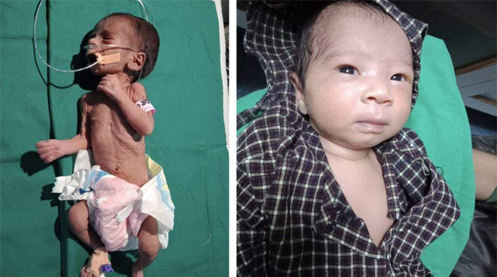 El milagro de la bebé india que fue enterrada viva