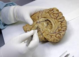 La mala calidad del sueño despierta al alzhéimer