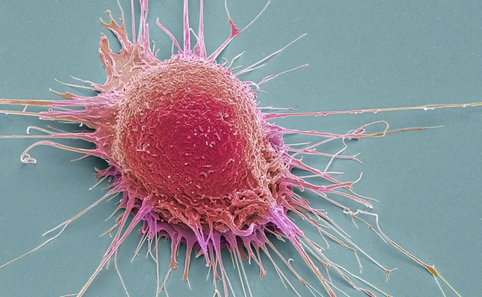 Célula de cáncer de próstata en una imagen de escáner coloreada