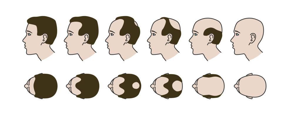 Kahlheitsentwicklung: Oft gehen Selbstwertgefühl und Schlaf mit den Haaren einher.