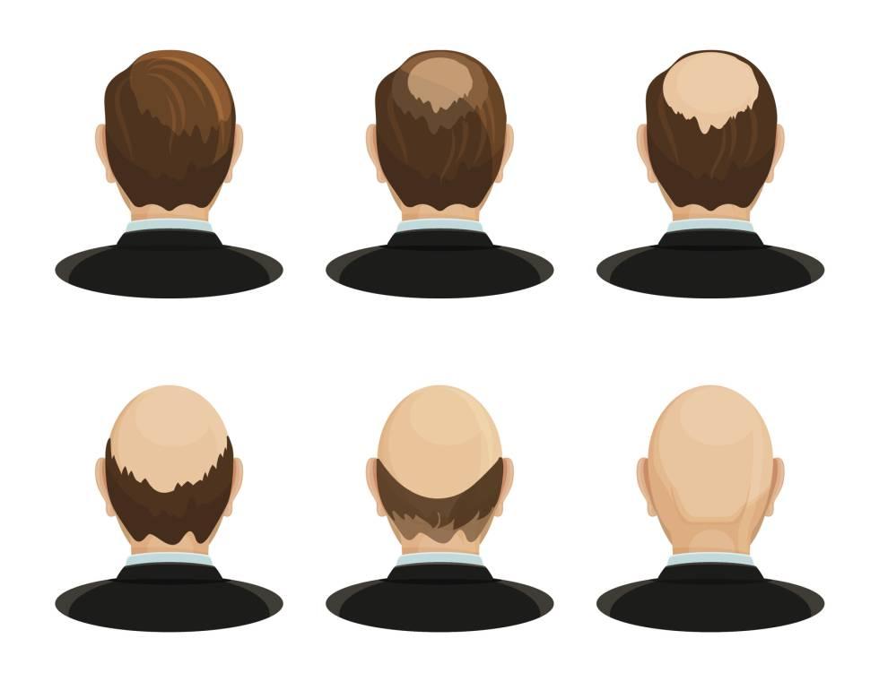 Wieder eine Dramatisierung des Haarausfalls.