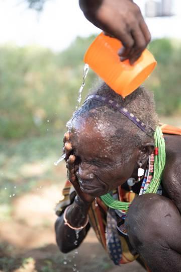 Para el tracoma una de las recomendaciones es lavarse las manos, pero también la cara.