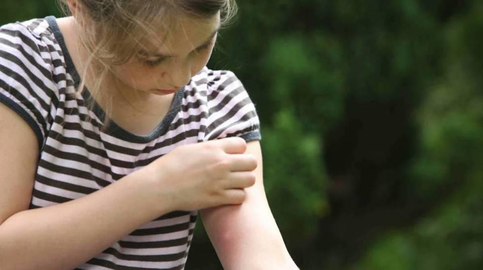 niños mosquitos verano