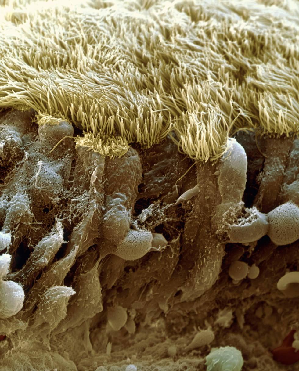 Cuestión de nariz.  Virus como el SARS-CoV-2 penetran en el organismo humano por orificios como la nariz. En la imagen, una sección a través del revestimiento epitelial de la cavidad nasal humana.