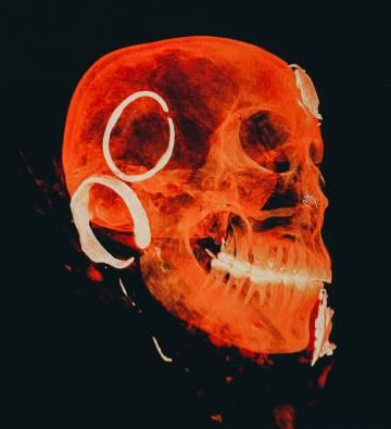 Tomografía del cráneo.
