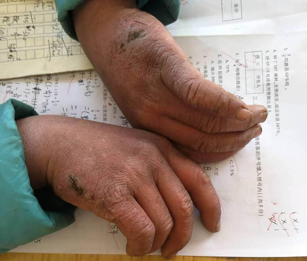 As mãos congeladas de Wang Fuman.