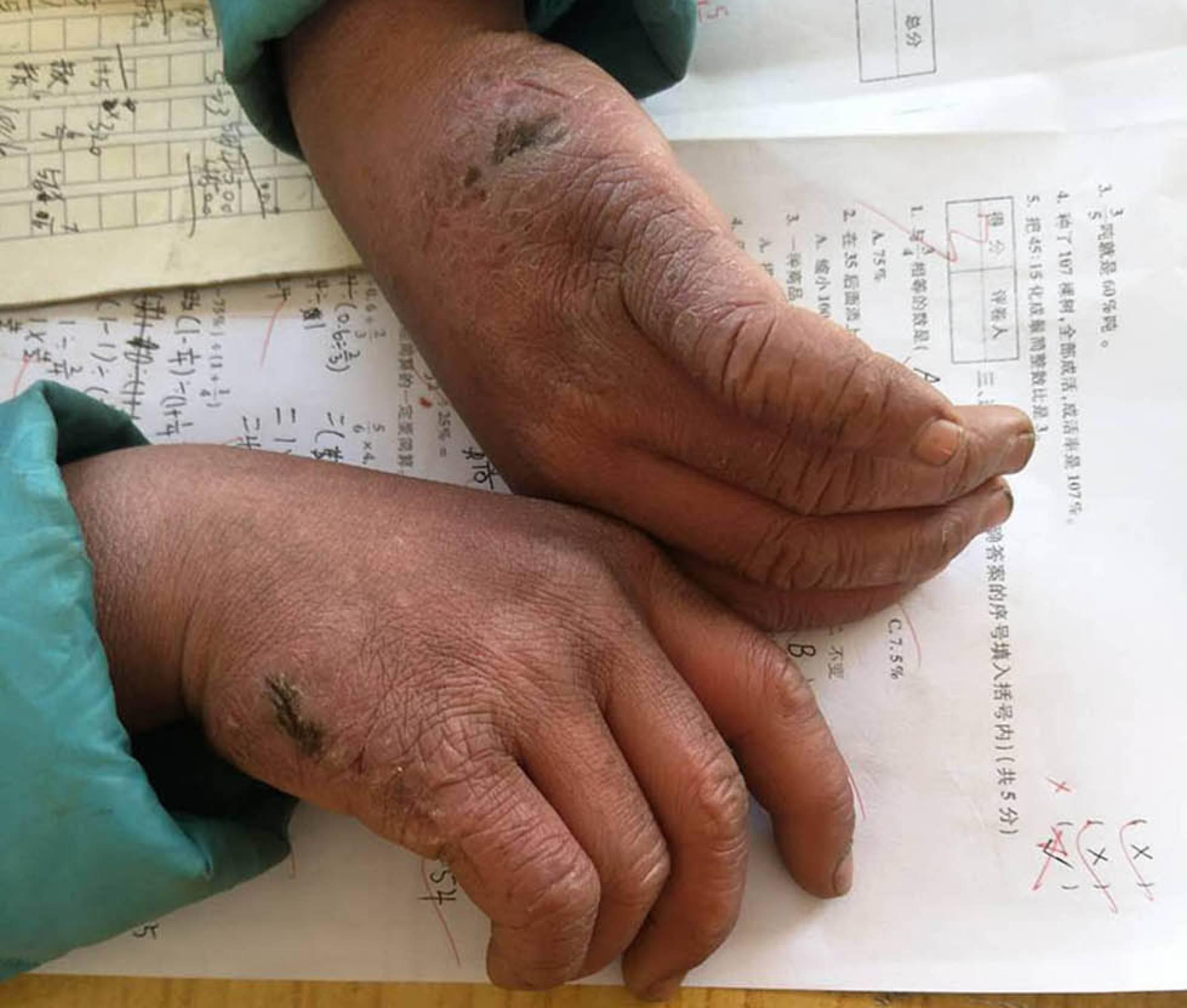 Las manos congeladas de Wang Fuman