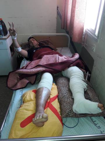 Mohamed Afna, de 22 años, en el hospital Shifa de Gaza.