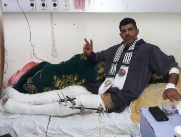 Mohamed Swayed, taxista de 40 años, herido en una pierna.