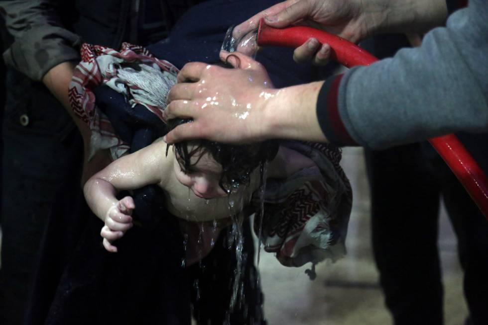 Un niño tratado en un hospital de Duma tras el supuesto ataque químico.