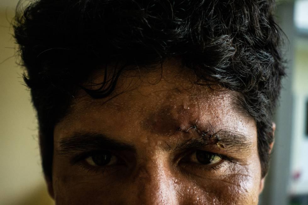 Byron muestra su cicatriz después de ser asaltado.