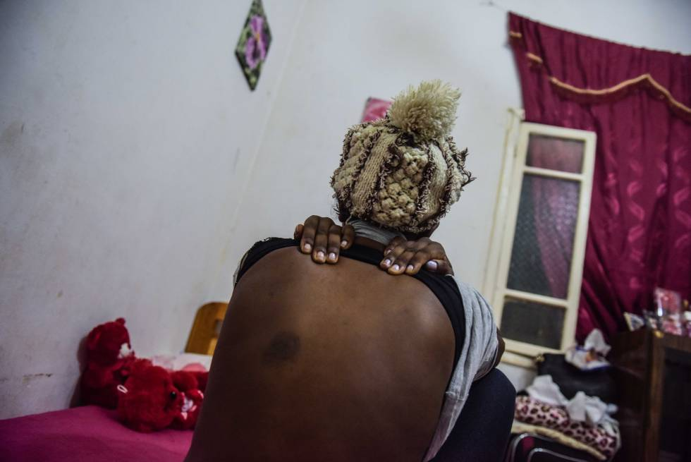 La joven etíope Meriem muestra las marcas de los golpes que le asestaron sus empleadores libaneses, en una casa de acogida en Beirut.
