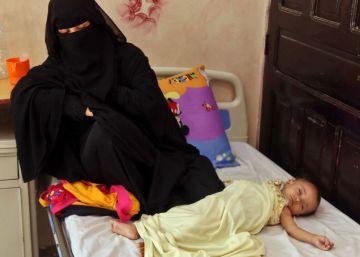 Una mujer yemení aguarda junto a su hijo desnutrido en un hospital de la ciudad de Taez, en el suroeste de Yemen.