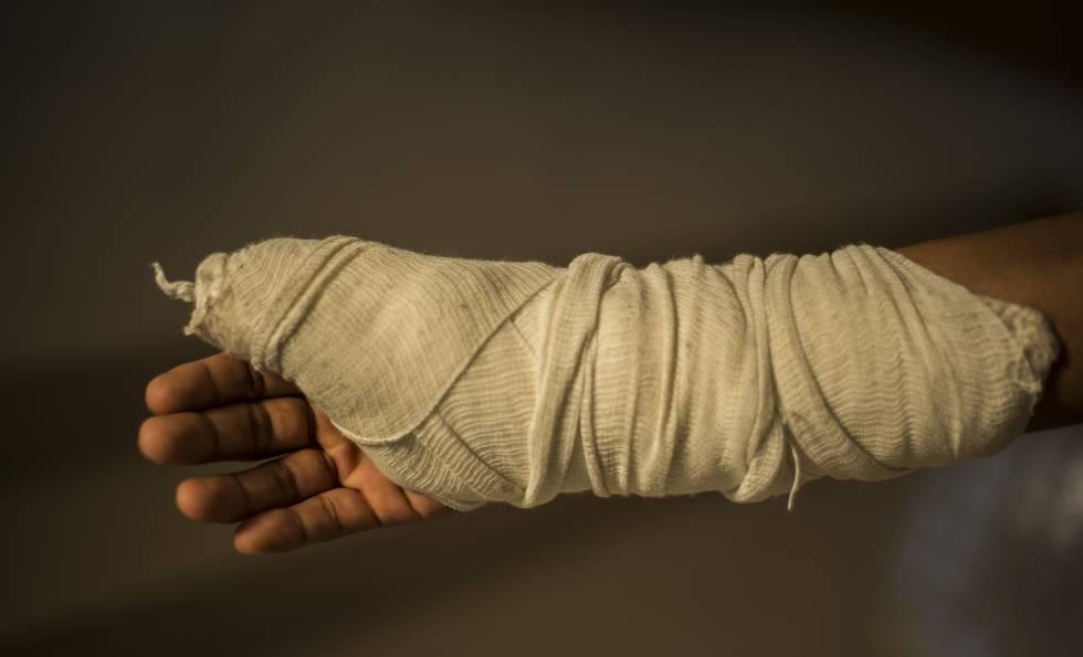 Un migrante hondureño, de 25 años, muestra su brazo herido tras un asalto en México.