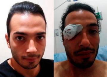 Wilmar Alexis Quiceno recibió el impacto de una granada aturdidora en Medellín el 21 de noviembre.