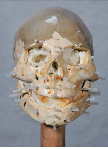 Fase intermedia de la aproximación facial en tres dimensiones.
