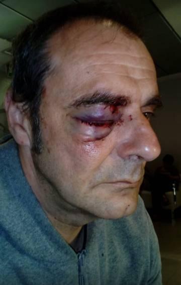 Sindicalista de Acaip herido en un ojo durante la protesta.