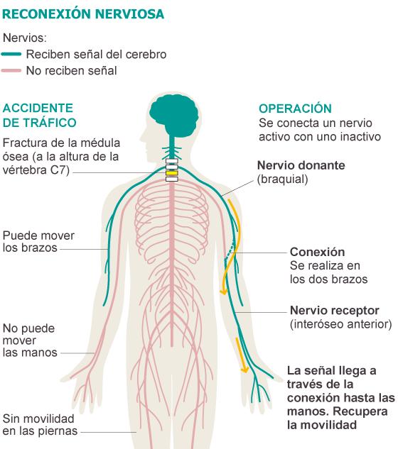 Una reconexión nerviosa permite mover los dedos a un lesionado ...